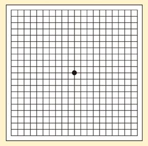 ↑ 「加齢黄斑変性」チェックシート。実際には解説ページにあるチャートを印刷し、約30センチ離れて、(眼鏡をかけたままで)片目を閉じて、表の中央の黒い点を見つめる。片目ずつ見て、両目では見ないように。